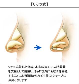 リッツ式鼻尖縮小術は、本来は捨ててしまう軟骨を支柱として使用し、さらに先端にも軟骨を移植することにより側面から見ても美しくシャープな鼻尖となります