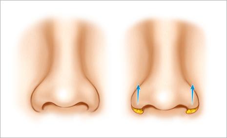 鼻翼縮小・挙上術とは
