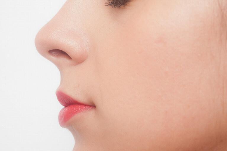 鼻の施術には「戻せるもの」と「戻せない」ものがあります